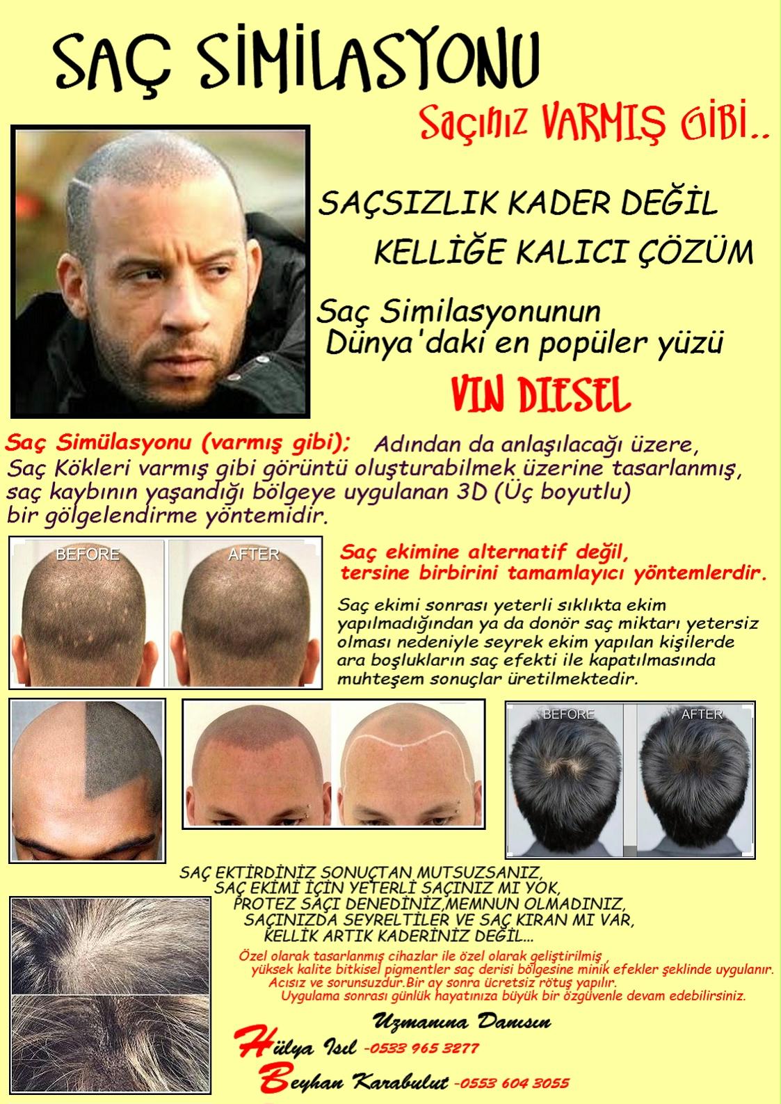 ERKEK SİMİLASYON BROŞÜR-3